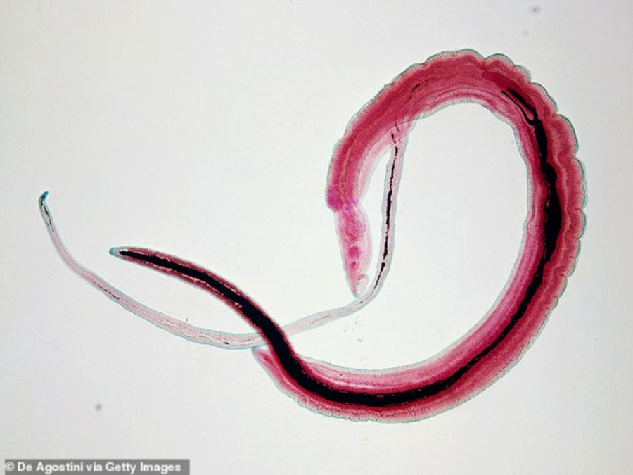 Man nearly  dies after parasite crawls into his penis and lays eggs