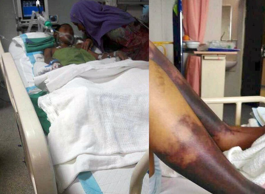 Tahfiz school beating: After legs amputated, boy could now lose arm