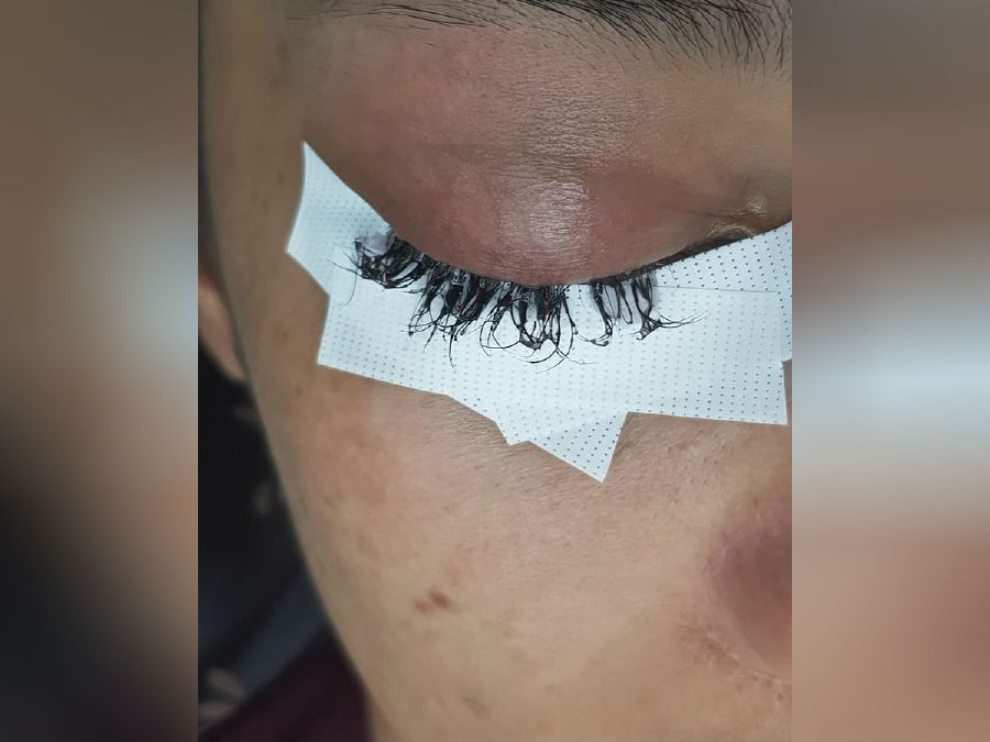 Woman hurt after Phuket beauty salon uses superglue to