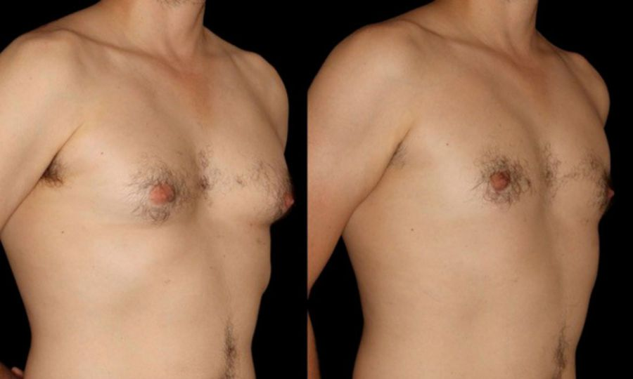 how to reduce breast tissue
