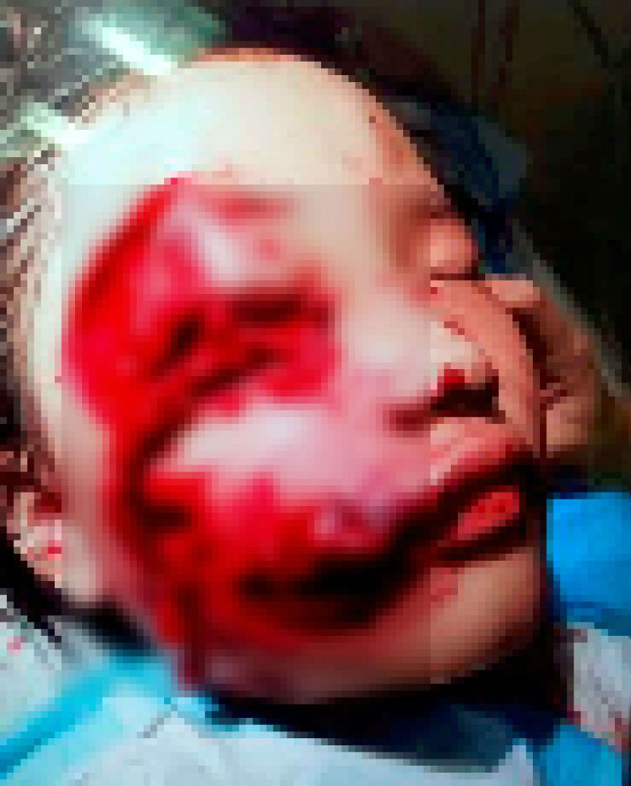 Pitbull attacks young girl, bites her face | New Straits