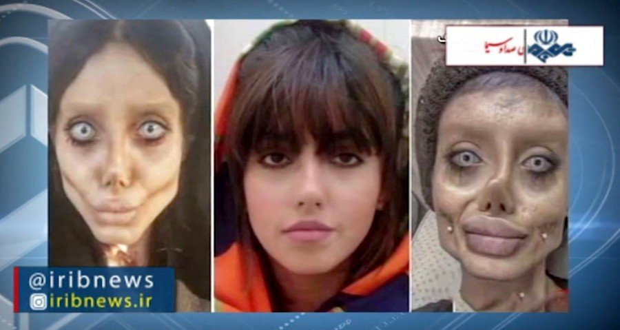 An image grab from footage obtained from Iranian State TV IRIB on shows a reproduction of pictures posted by Iranian Intagrammer Sahar Tabar of herself before (centre) and after numerous plastic surgeries. -AFP/HO/IRIB